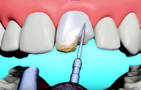orlando cosmetic dentist bonding versus dental veneers