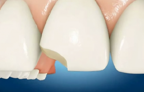 orlando dentist chipped tooth bonding repair