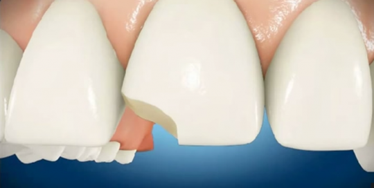 orlando dentist chipped tooth bonding repair