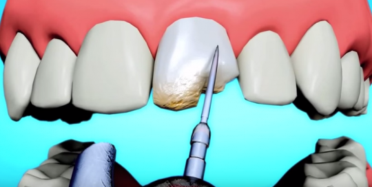 orlando cosmetic dentist bonding versus dental veneers